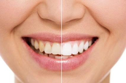 Bleaching - Zahnaufhellung, Zahnarztpraxis Terliesner, Ahaus