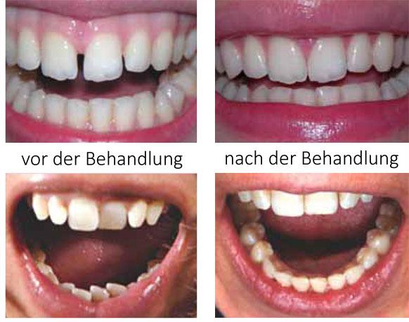 Harmonieschiene von Ortho, Zahnkorrektur für Erwachsene